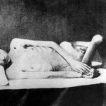 nazi-concentration-camps-clauberg-sterilized-woman