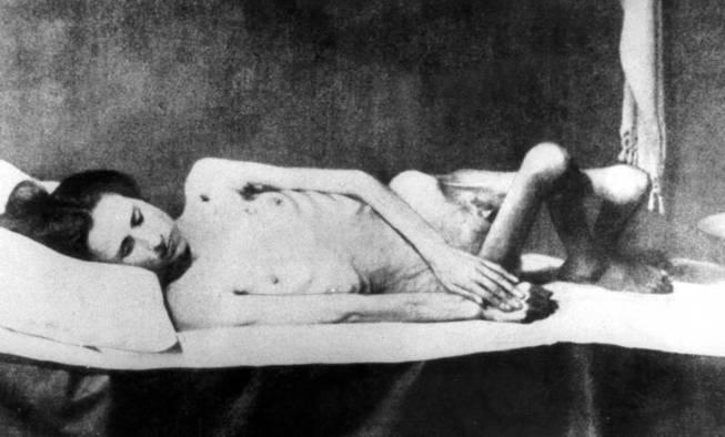 nazi-concentration-camps-clauberg-sterilized-woman